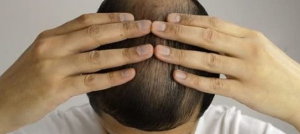 Hair-Restoration-Process