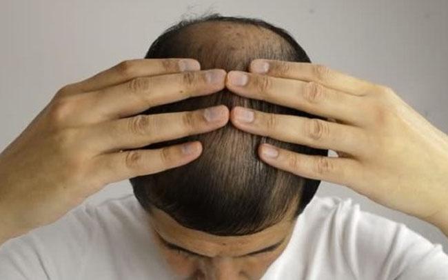 Hair-Restoration-Process