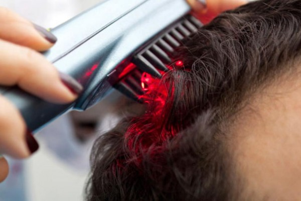 Hair-transplant-clinic-Noida