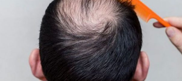 Hair-transplant-in-Noida