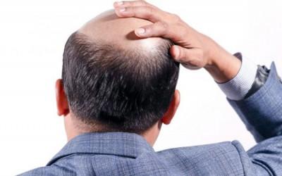 hair-transplant-in-Meerut