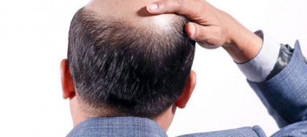 hair-transplant-in-Meerut