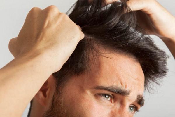 best hair transplant in South Delhi