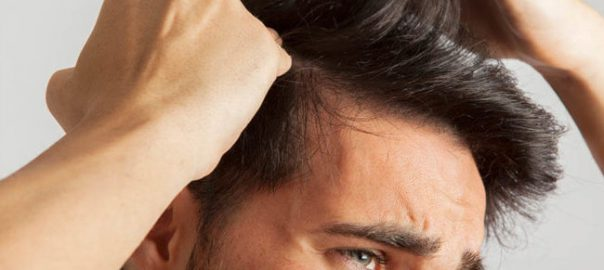 Hair-Transplant-in-South-Delhi