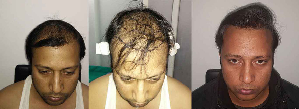 Hair Transplant in South Delhi