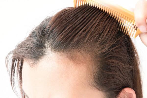 hair transplant in Noida