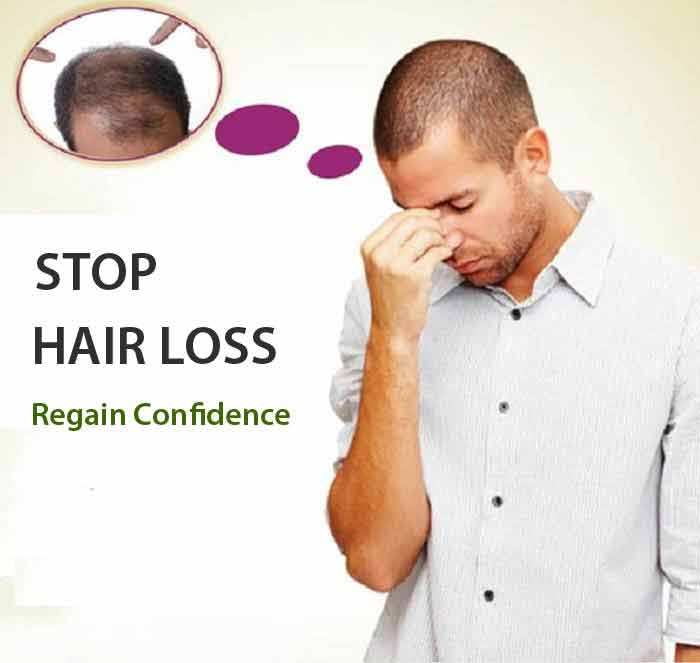 best hair transplant in Faridabad