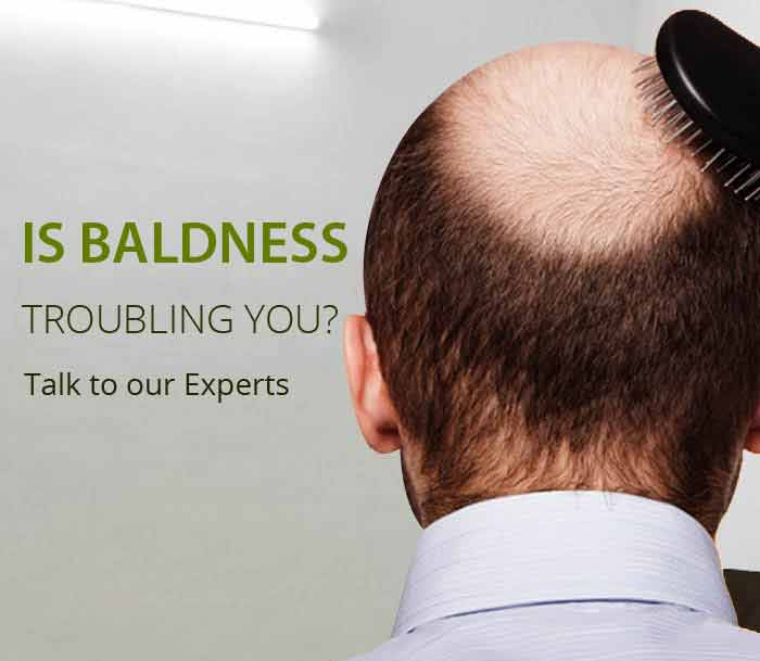 best hair transplant in Noida