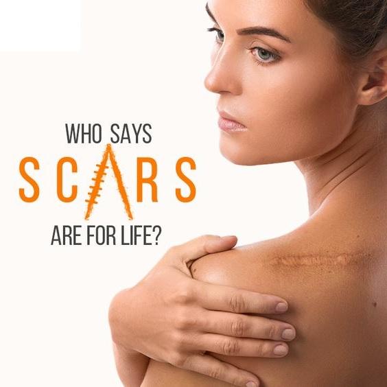 laser scar treatment in South Delhi