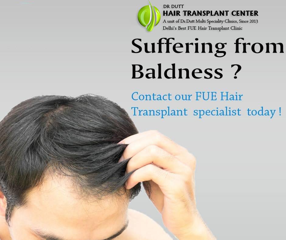 fue hair transplant in Meerut