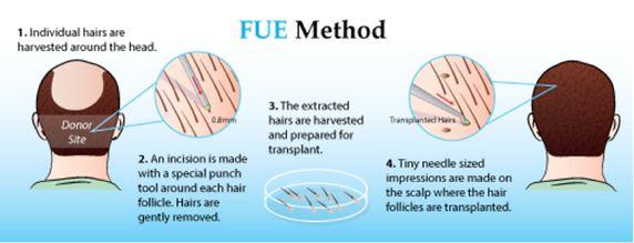 hair transplant clinic in Meerut