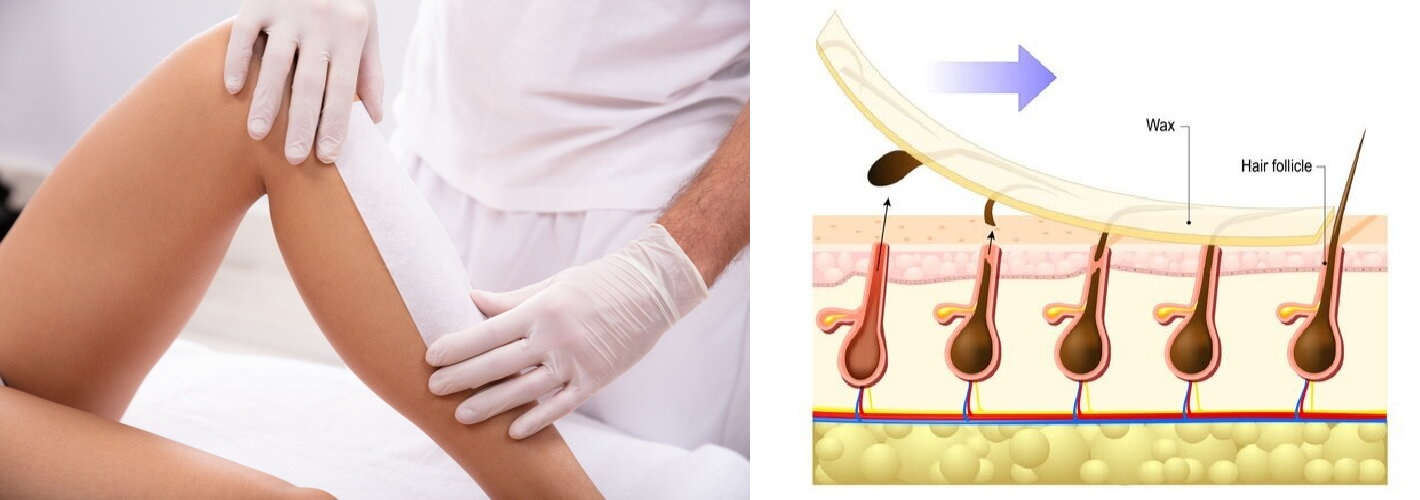 laser hair removal in New Friends Colony